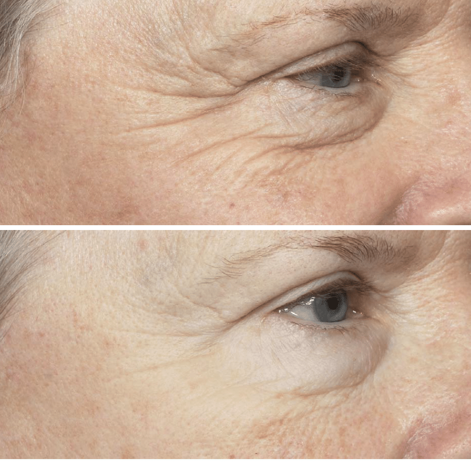Baseline Before and After Fraxel is 3 months with only 1 treatment