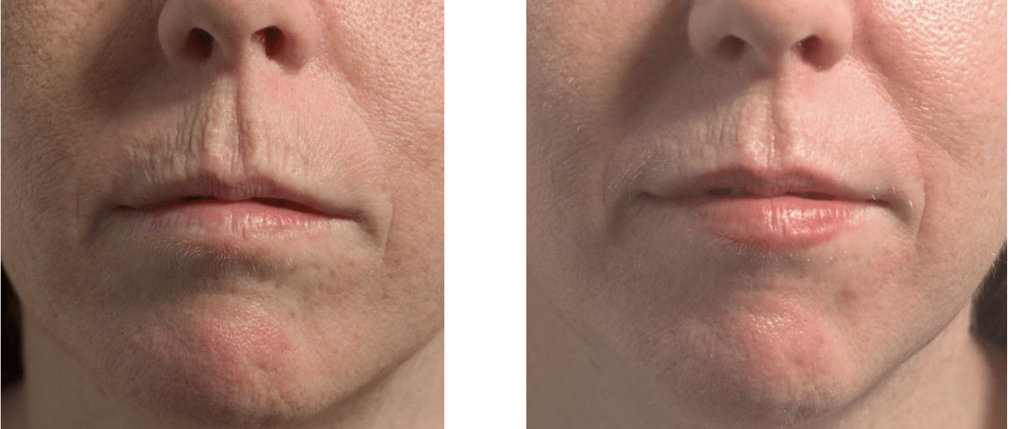 Baseline Before and After Fraxel is 1 month with only 1 treatment
