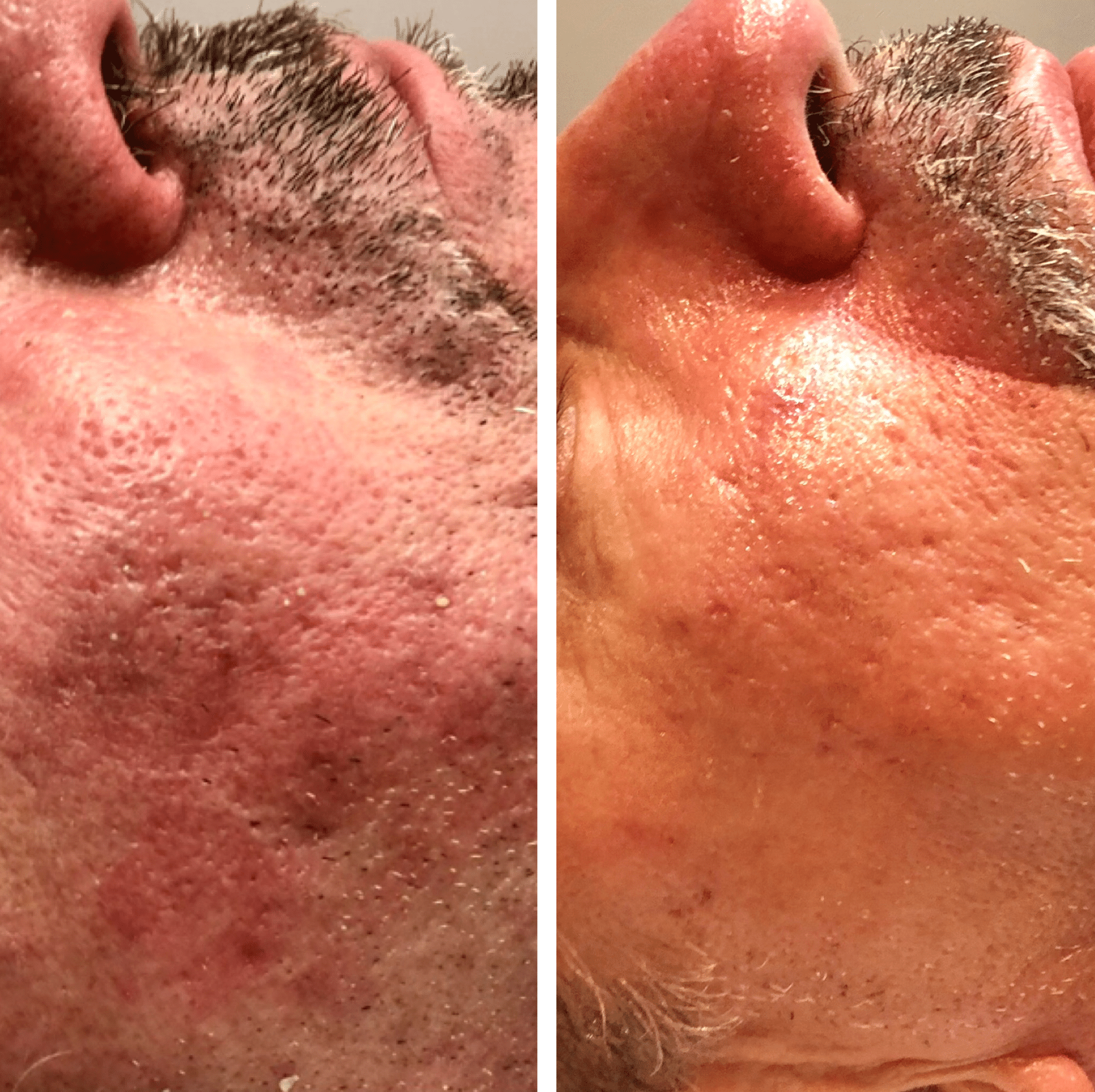 Skin Transformation by Savannah @GerrishMedEstheticsThis is after only one IPL treatment and one Hollywood Laser Peel. These procedures make a world of difference when it comes to evening out discoloration, acne, clogged pores, rosacea, redness, and sun damage. Call and schedule your free consultation or appointment today!