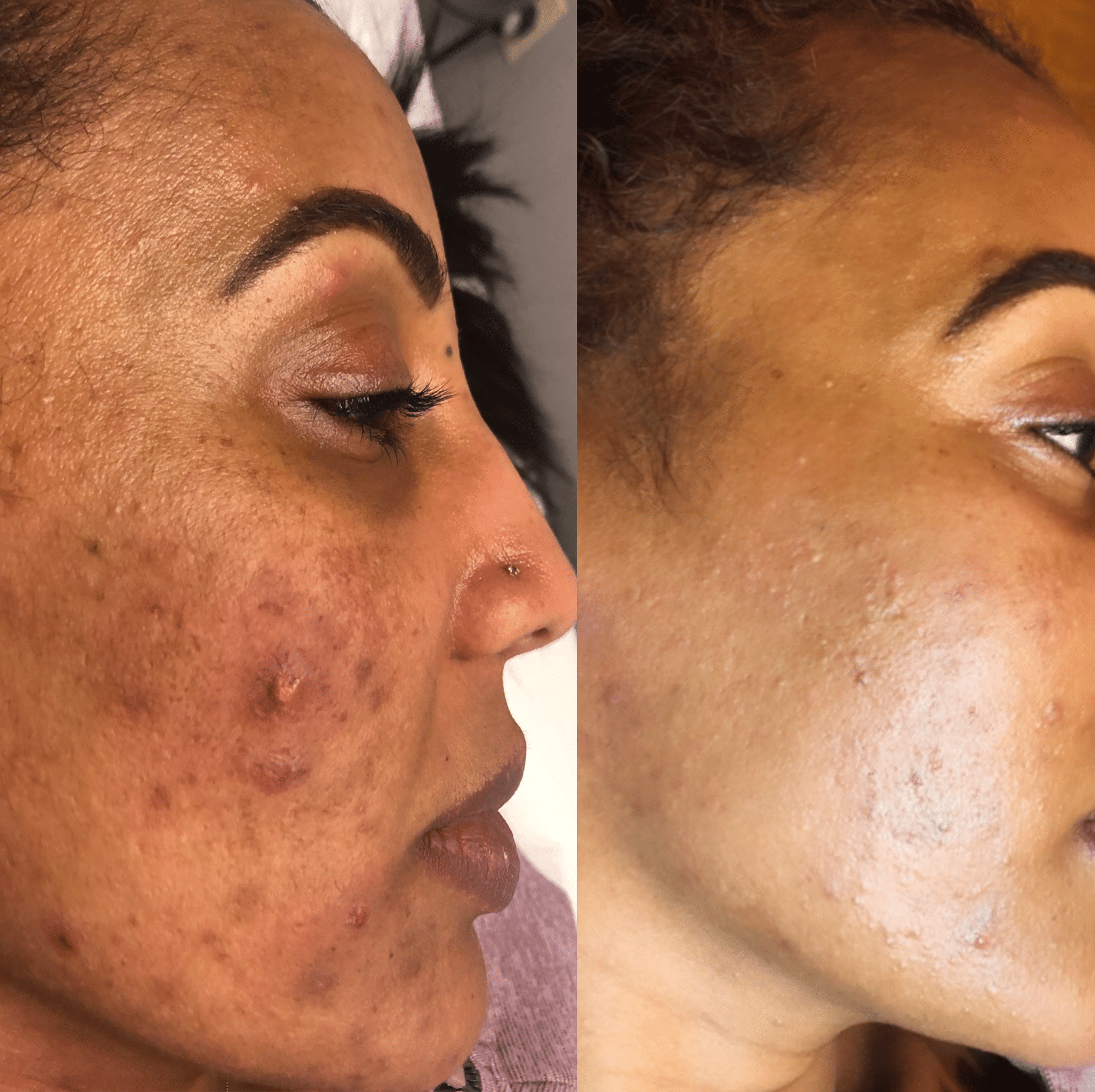 Skin Transformation by Savannah @GerrishMedEsthetics Look at this incredible before and after shot. 🙌🏻This is after three Perfect Peels and using a medical-grade skincare line at home. This type of peel is a medium-depth chemical peel that can be performed as a stand alone treatment or in addition to other cosmetic procedures. It's considered safe for all skin types and skin tones. Not only does it improve the general look and feel of your skin, it also reduces lines under the eyes and around the mouth, treats wrinkles caused by sun damage and aging, improves the appearance of mild scars, reduces age spots, treats certain types of acne, and reduces age spots, freckles and dark patches related to pregnancy and birth control. It's amazing! Let me know if you have questions or need more info.