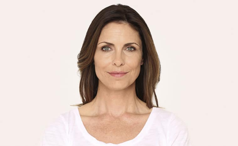 *Leanne, age 46, 2 weeks after being injected with 3.0 cc of RADIESSE in the lower face. Individual results may vary. Unretouched photos of actual patient.