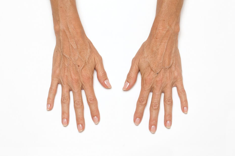 *Treatment volume: 1 syringe (1.5 cc) per hand. Individual results may vary. Unretouched photos of actual patient.